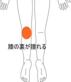 膝 の 後ろ が 痛い
