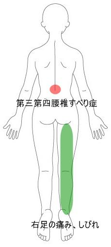 腰椎 すべり 症
