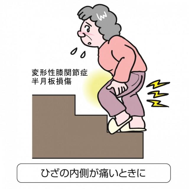 ひざの痛み 変形性膝関節症 イラスト
