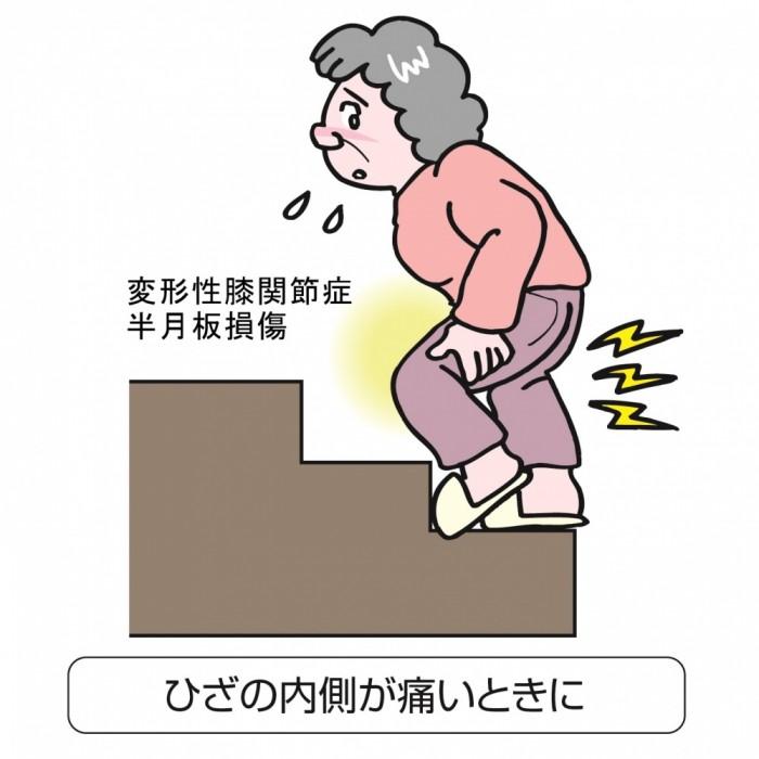 ひざの半月板のトラブル