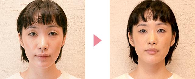 美顔の調整法を受けられた方のビフォーアフター画像